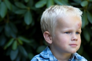 Child with head injury