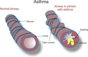 Diagram showing the normal airway and the airway of an asthma suffer for comparison